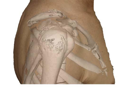 Schulter - Aufbau und Anatomie