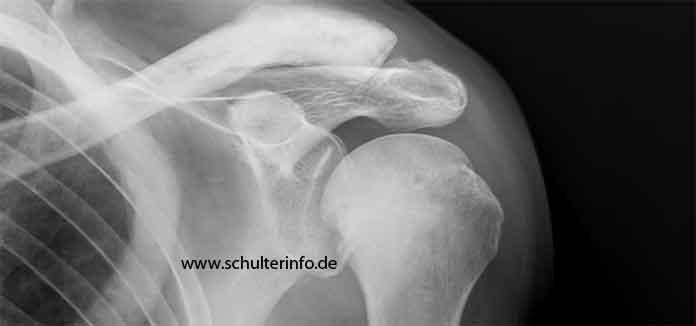Oberarm knoten Muskelknoten beseitigen
